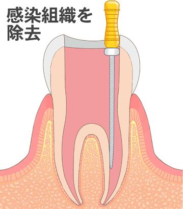 batsuzui